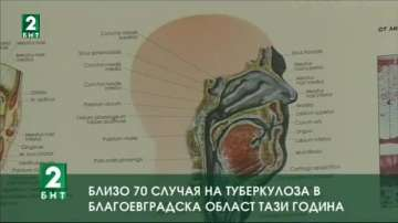 Близо 70 случая на туберкулоза в Благоевградска област тази година