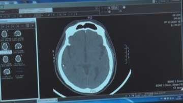 Иновативно лечение на аневризма в Плевенската неврохирургия