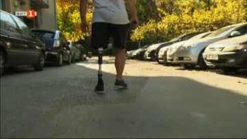 Частен случай: Защо хора с ампутации са принудени да крият, че имат увреждане?