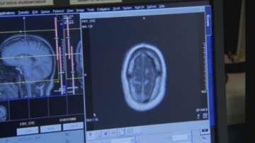 Високотехнологична операция на мозъчен тумор в Плевен