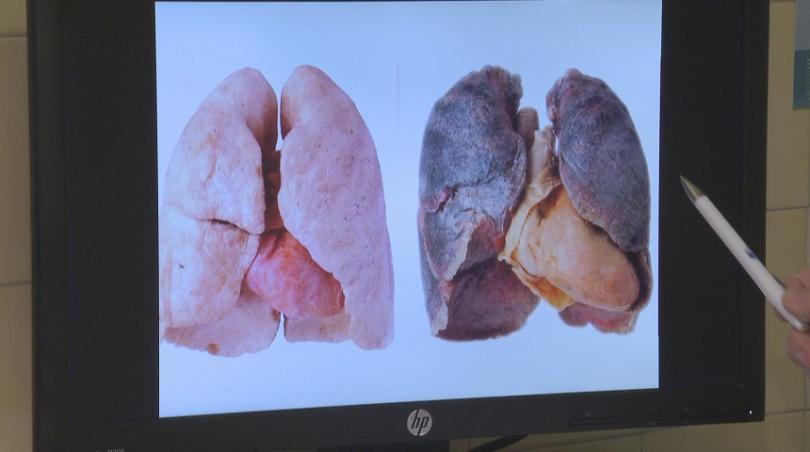 """""""Това е един бял дроб, който не е бил излаган на замърсяване на околната среда"""", обяснява д-р Симидчиев. """"Този бял дроб е излаган на замърсяване на околната среда, независимо дали това е от фини прахови частици  или от цигари."""""""