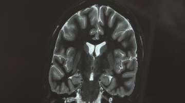 50 000 българи страдат от епилепсия