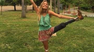 Бразилски модел без един крак помага на хората да повярват в себе си