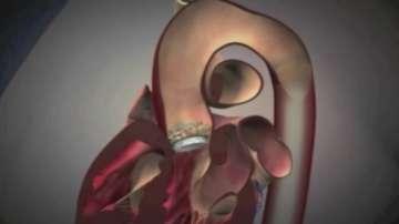 Безкръвна смяна на клапа на сърце