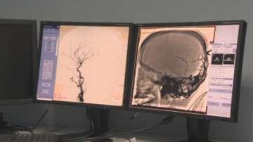 Уникална мозъчна операция на дете извършиха в София