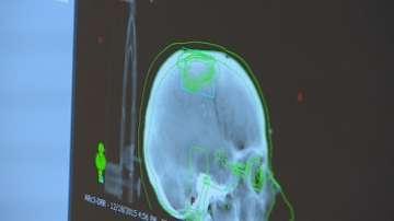 Радиохирургията у нас с първи добри резултати