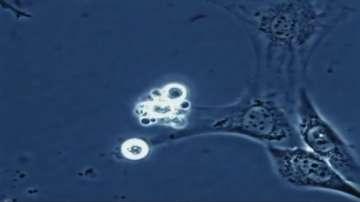 Нов подход в лечението на рака