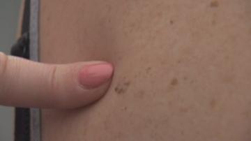 Увеличават се болните от рак на кожата