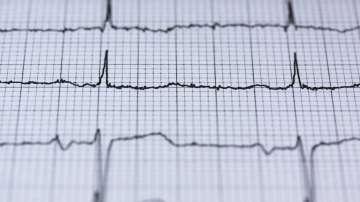 """УМБАЛ """"Св. Екатерина"""" с нов метод за лечение на сърдечни аритмии"""
