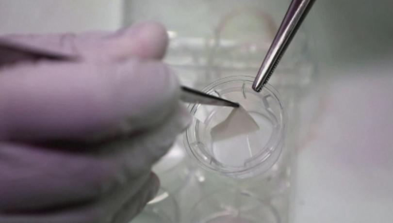 Създаване на човешка кожа с 3d принтер - отдавана се
