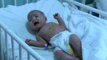 Лекари се борят за живота на 3-месечно бебе