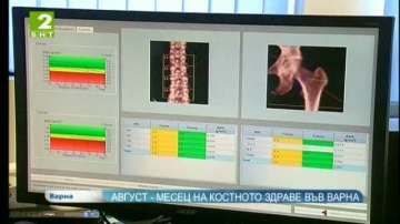Август - месец на костното здраве във Варна