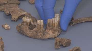 Пътуване в миналото - откриха доказателства за медицинска операция на 1700 г.
